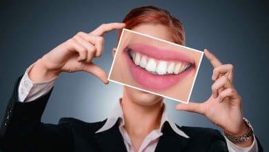 الفراغات بين الأسنان من الجمال أم لا ؟